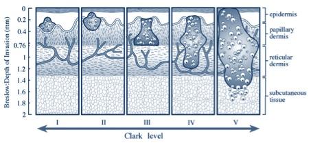 Melanoma Chart
